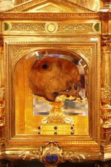 Le «prétendu crâne d'Aubert» troué
